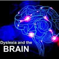 Dyslexia and the Brain - Resource Notebook