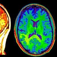 Neuro Portfolio