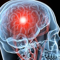 Traumatic Brain Injury Pathfinder